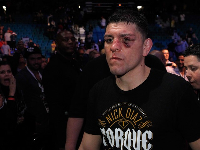 Nick Diaz leaves the arena after losing to Anderson Silva in a middleweight bout during UFC 183 at the MGM Grand Garden Arena on January 31, 2015